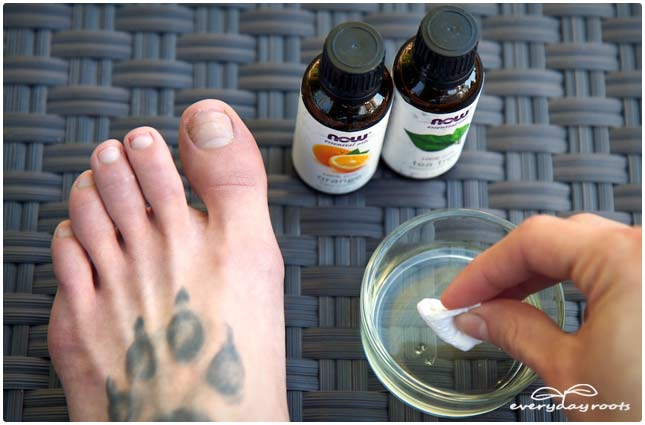 essential oils and nail fungus