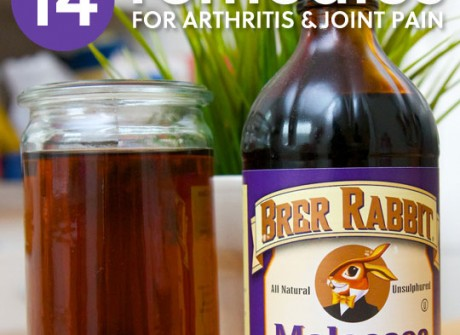 14 Home Remedies for Arthritis & Joint Pain- a great list of natural ways to relieve joint pain.