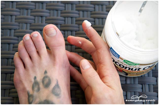 3 Simple Home Remedies for Toenail Fungus | Everyday Roots