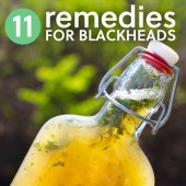11 Simple Remedies to Get Rid of Blackheads- these work great for me! Way better than using store-bought pore strips and chemical scrubs.