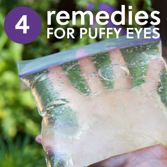 Try these effective natural remedies to get rid of puffy eyes and bags under eyes.