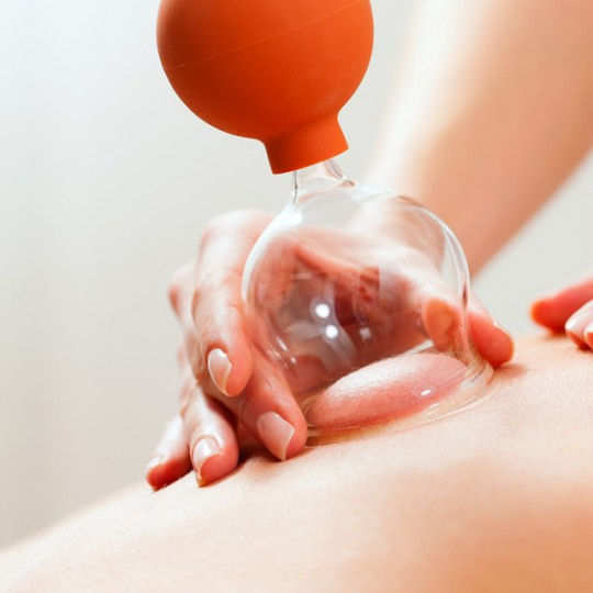 Cupping Therapy Scar Tissue